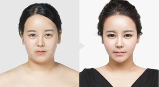 [韩国童颜整形]在韩国TL医院做了LAFiT提升术!女生都想要一张更v的上镜脸!